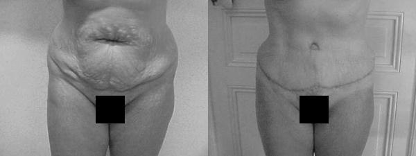 lifting-abdominal2
