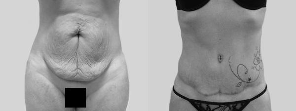 lifting-abdominal3