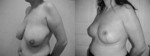 réduction-mammaire