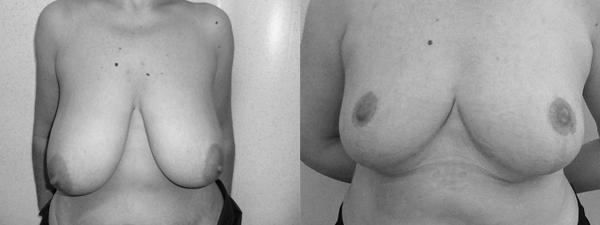 réduction-mammaire2