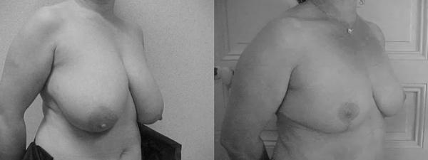 réduction-mammaire3